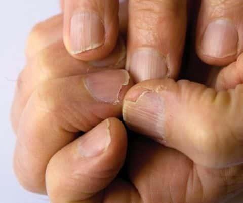 Consecuencias de ponerte uñas acrílicas